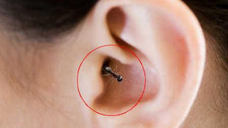 热闻精选:耳巢!蚂蚁在人类脑中不断繁衍