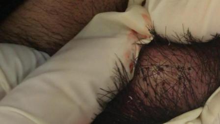 火针治疗头部囊性瘤体