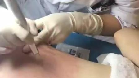 怎么才能修复妊娠纹