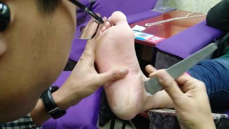 小铭教你做足疗: 修脚篇