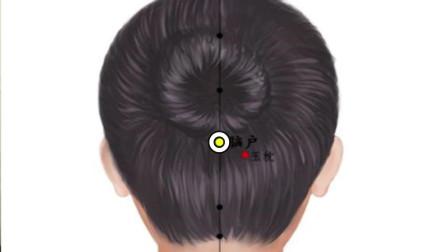 脑户穴:每天按摩5分钟,缓解治疗头痛、失眠、眩晕、枕神经痛等