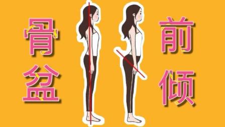 小肚子凸出,不是因为胖,很可能是骨盆前倾
