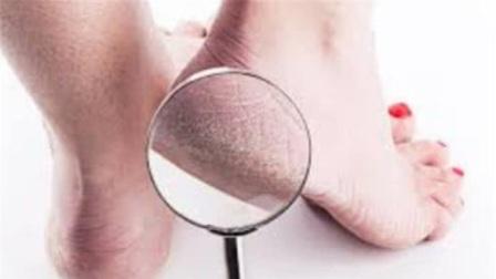 """无论男女,如果脚上出现这2种""""东西"""",暗示体内或有癌细胞!"""