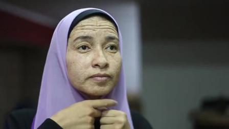 23岁女孩患超罕见病,长着70岁老人脸