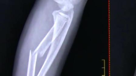 8岁男童玩蹦蹦床 不慎摔骨折
