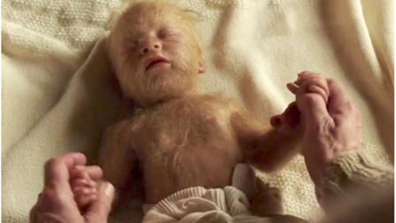 女孩一出生就浑身毛,被人当成怪物嘲笑,父亲甚至连名都不愿起!