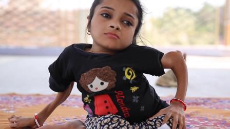 世界上最脆弱的女孩,骨折1000多次,轻轻一碰身体就散架了