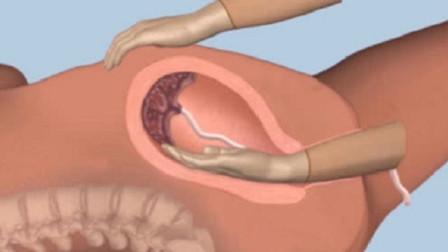 产后手剥胎盘到底有多痛?看完3D过程,真心感觉女人不容易!