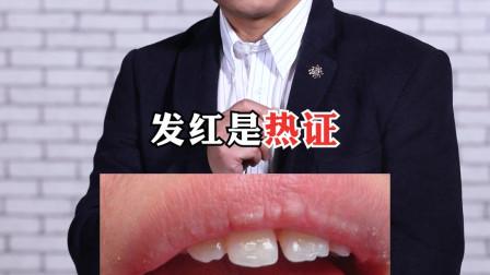 如何通过舌苔知道身体健康状况?