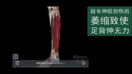 肌骨超声病例