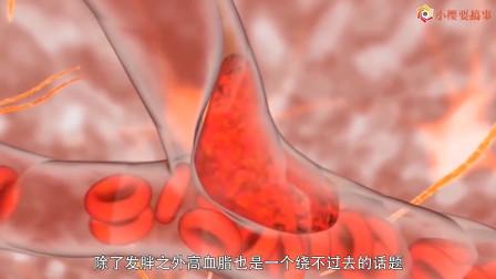 很多人在想办法防控高血脂,但是你知道高血脂到底是怎样引起的吗?