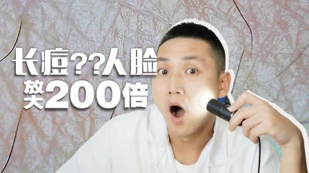 为什么每天洗脸还会长痘?脸部放大200倍,看完涨知识了