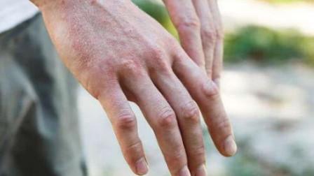 肺部有癌手知道,手指若出现这4个症状,你的肺部可能存在病变