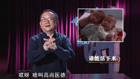 分割连体婴,医生再想对策,兄弟俩能平安吗