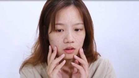21岁女孩脸上出现这东西,去医院检查,医生直摇头:癌症来了