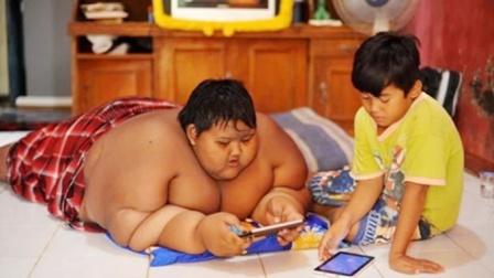 印尼少年体重400斤破世界纪录,减掉186斤后