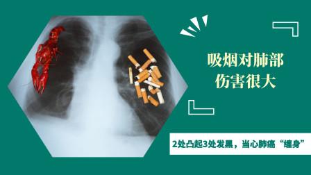 """烟瘾大的人,谨防身体2处凸起,3处发黑,当心肺癌""""缠身"""""""