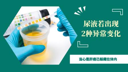 尿液若出现2种异常变化,当心是肝癌已躲藏在体内,不妨自查