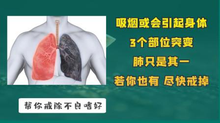 吸烟或会引起身体3个部位突变,肺只是其一,若你也有,尽快戒掉