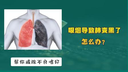 吸烟导致肺变黑了怎么办?三个小方法,不戒烟或也能让肺好受些