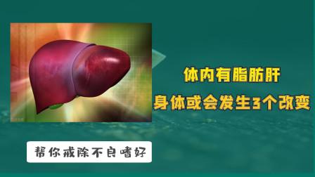 体内有脂肪肝,身体或会发生3个改变,若占2个以上,提示该体检了