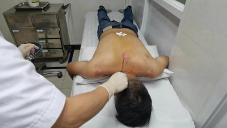 """""""巨针疗法""""治疗脊柱中间疼痛"""