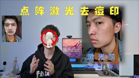 【祛痘vlog】10年痘印,点阵激光真的有效?