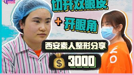 三千块做完全切双眼皮+开眼角 算是成功杀进美女阵营了吗?