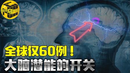 全球仅60例! 这种罕见疾病能开启大脑无限潜能 患者却无比痛苦