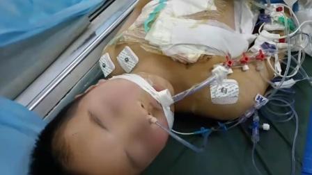 警方通报村医儿子遭砍伤:嫌犯对病未治愈心生不满#酷知#