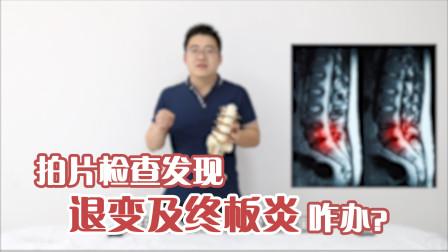 拍片检查退变及终板炎,是它引起腰腿痛?需结合3个方面才能确诊