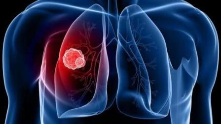 睡觉时出现4种异常警惕体内有癌了!