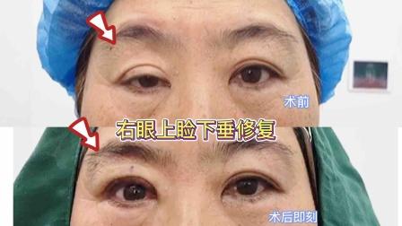 右眼上睑下垂修复