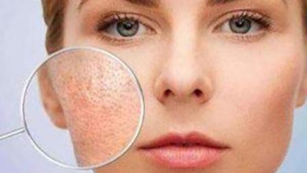 """皮肤若有4种异常,肝或已""""生病"""",需留意,早发现早治疗"""