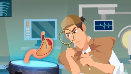 胃食管反流2:反酸竟能搞出食管癌?