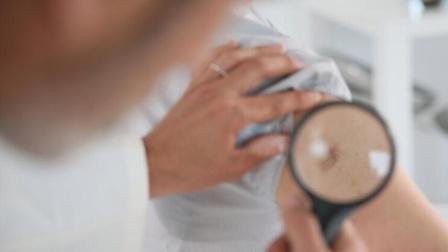体内有癌,皮肤先知!当皮肤出现6种异常,可能是癌症来了
