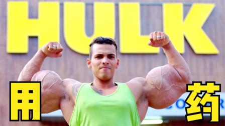 5个怪异的伪健美先生,俄罗斯小伙注射胆固醇长出64cm粗的胳膊?