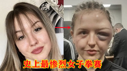 惨烈格斗比赛,女神拳手被打得面目全非,脸蛋肿成足球!