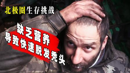 《荒野独居》:缺乏营养导致脱发?中国女婿头发都要秃了!
