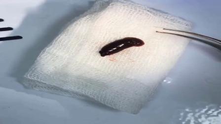 男子在山间溪流中洗脸后鼻子不断流血 到医院一检查竟取出活物