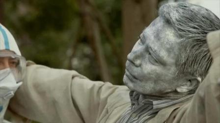 日本发现奇怪疾病,所有患者都四肢僵硬,最终竟然变成石像!
