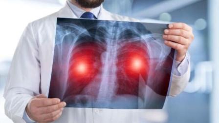 肺癌缠身,有哪些明显症状?提醒:这4个变化,别视而不见!