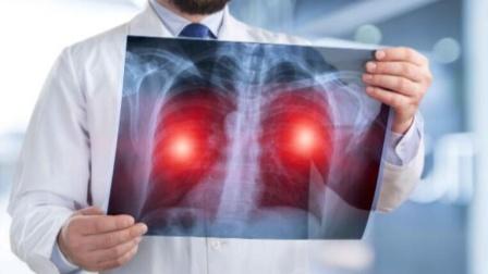 肺癌不声不响?医生叹息:这5种迹象或与肺癌有关,太多人没看懂