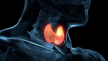 女性甲状腺癌越来越普遍?医生:或与这4点因素有关,早避开才好