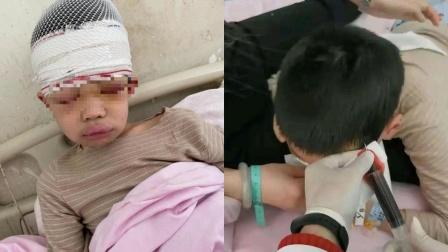 河南一9岁男童因上课说话被名师体罚 学校:属个人行为 已被拘