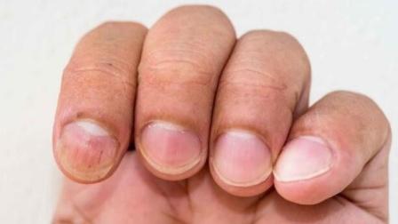体内有癌,手脚藏不住?忠告:手脚若出现这些症状,早做检查