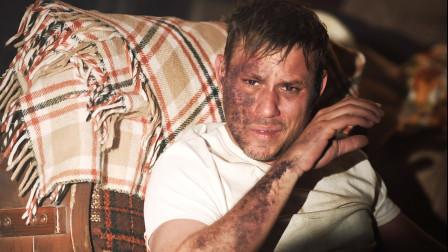 男子每天一箱啤酒,结果身体产生问题,浑身溃烂还感觉不到疼痛