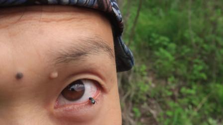 松树林中有一种小苍蝇一样的昆虫,飞眼睛里帮我清理了眼部气孔