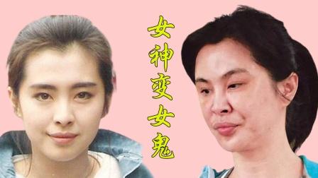 女星整容失败前后对比,王祖贤判若两人