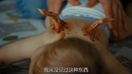 男婴背后长出鸡翅膀,父母以为天使转世,医院检查才知大祸临头